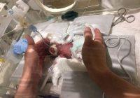 Pasaulē vismazākais piedzimušais un izdzīvojušais mazulis (453 g) beidzot dodas mājās