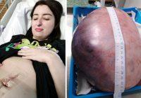 Sievietei, kas izskatījās stāvoklī, atklāja arbūza lieluma olnīcas cistu