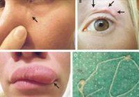 Zem sievietes sejas ādas pārvietojās kāds redzams, mistisks kamols – prātam neaptveramas ziņas viņai pavēstīja ārsti